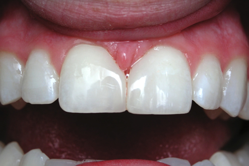 After White Fillings
