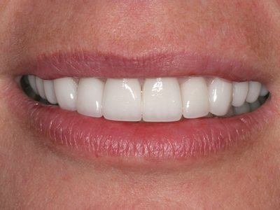 After Smile Makeover with Veneers