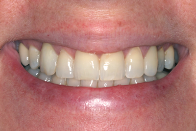 Before Smile Makeover with Veneers
