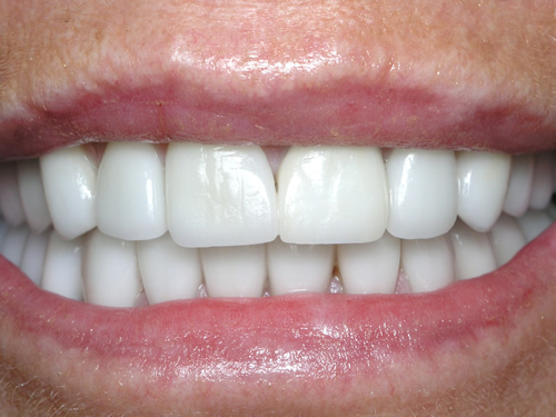 Smile Gallery Case Study After Treatment
