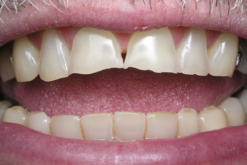 Smile Gallery Case Study Before Treatment